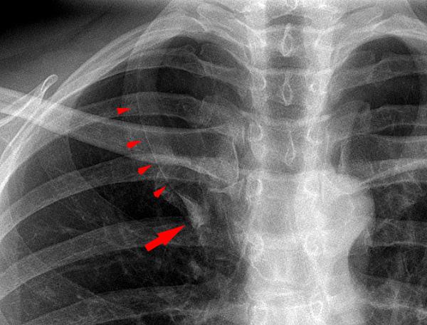 Röntgenbefund lobus venae azygos der zusätzliche lungenlappen