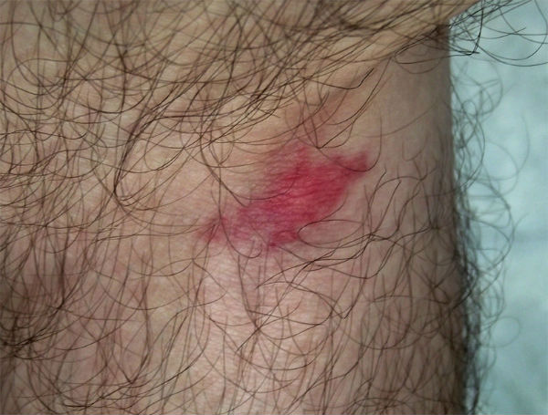 Horsefly Bite Pictures On Dogs