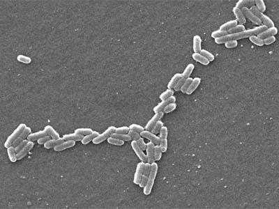 Verwandte suchanfragen zu bakterien im urin bei kindern