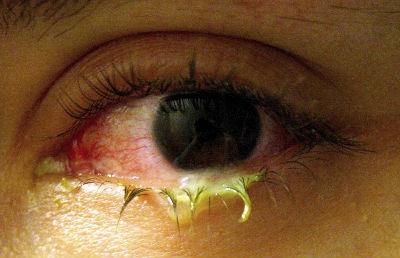 Re häufige eitrige bindehautentzündung tochter 6 jahre