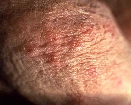 blutung beim geschlechtsverkehr herpes durch geschlechtsverkehr