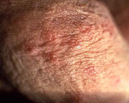 da helseproblemer herpes genitalis