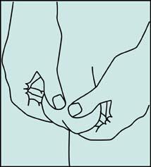 Hodensack knubbel im Knubbel im