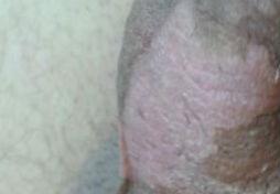 Entzündung am Penis - Pilz oder Trockene Haut -
