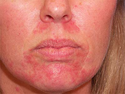 What can burn cheeks: causes, designations, signs and superstitions