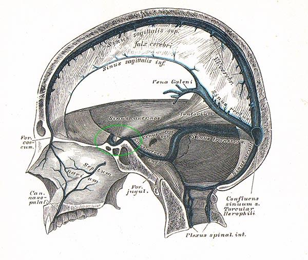 Pickel Nase Gefahr einer Hirnhautentzündung?. Cyberdoktor ...