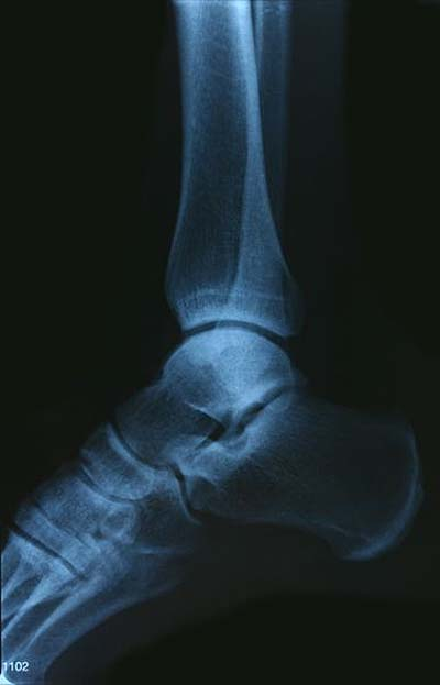 angeschwollenes knie ohne schmerzen