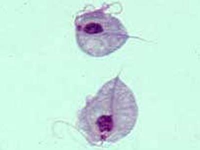 vaginose gardnerella vaginalis