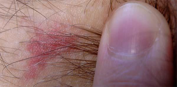 Die Behandlung nogtewogo gribka lamisilom